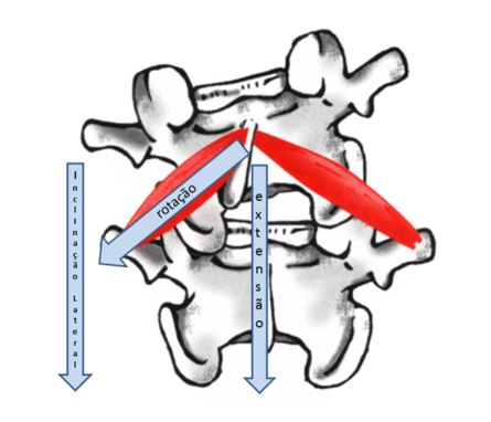 Os 5 lados da escoliose. Lado 4.  cranio caudal da escoliose